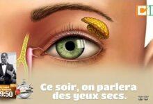 02 Mn Pour Comprendre Les Yeux Secs T Bgjmwf338 Image