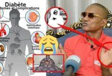 Incroyable Revelation Dr Diallo Serigne Touba Moy Kamal Motakh May Fadj Diabete Sans Ffjel8Amyha Image